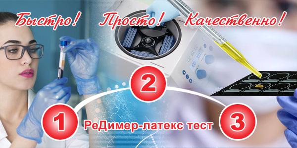 http://renam.ru/wp-content/uploads/2020/04/Реклама-D-dimer2.pdf